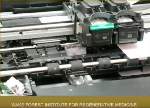 Printing a human kidney   Anthony Atala